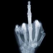Ilyen röntgenszemmel a világ